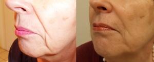 Rughe naso e bocca - risultato dopo 3 mesi