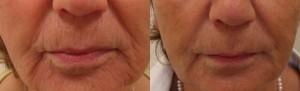 Rivitalizzazione contorno bocca