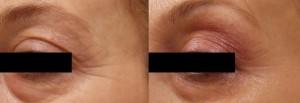 Trattamento del contorno occhi