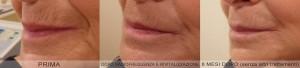 Rughe del contorno bocca