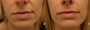 filler labbro superiore