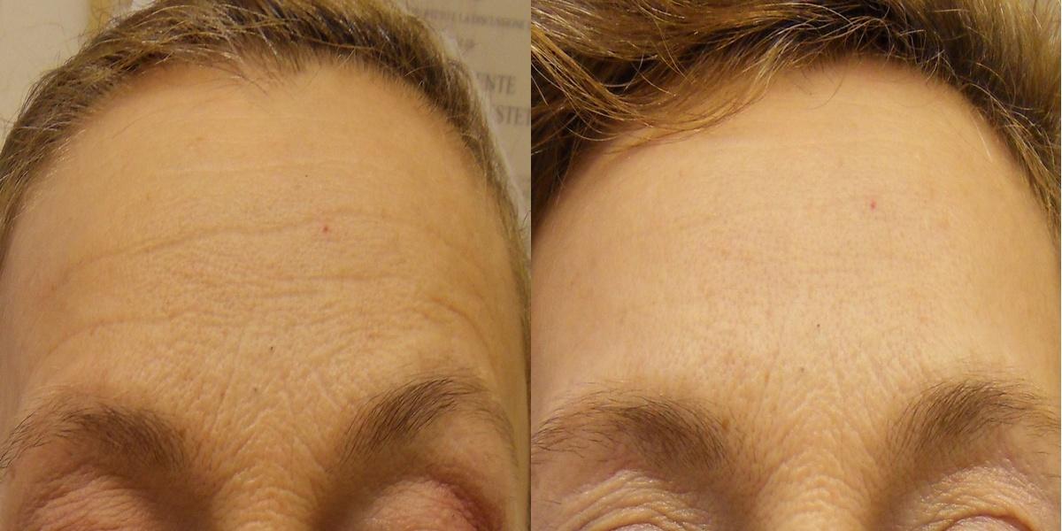effetto collaterale viso botox slime